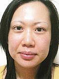 究極の造顔エステを受ける前の女性