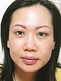 究極の造顔エステを受けた後の女性
