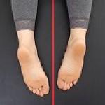 施術後足が4cmも短くなった様子